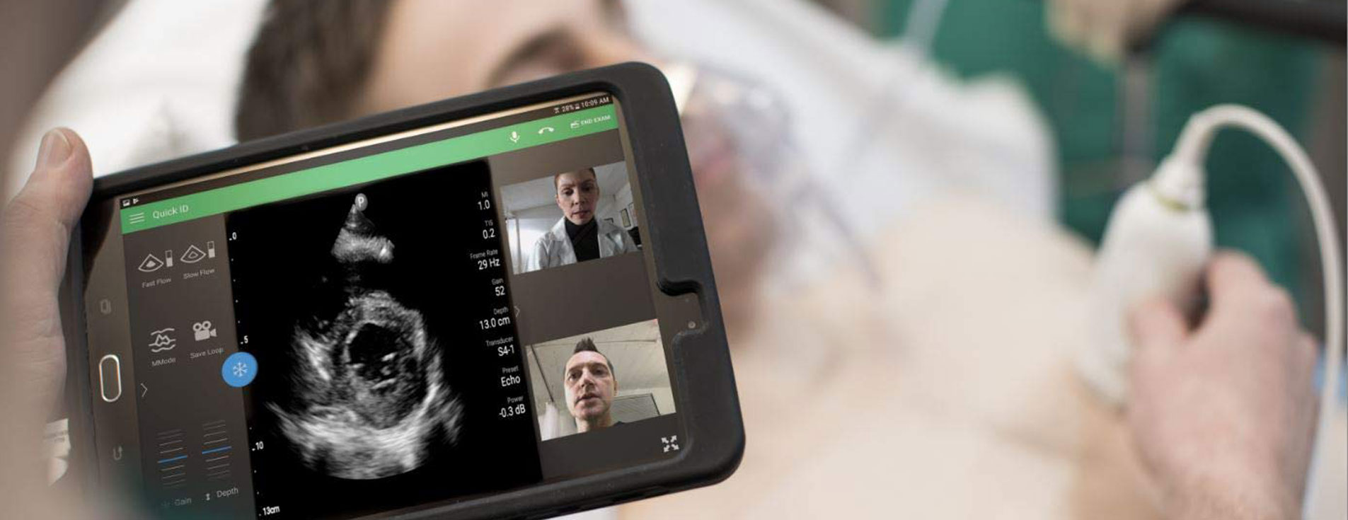 LUMIFY SMART PORTABLE ULTRASOUND